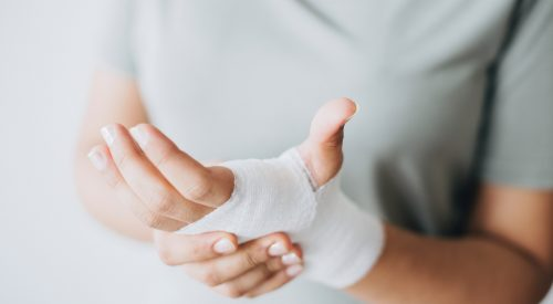 Common California Personal Injury Cases article thumbnail mt-2