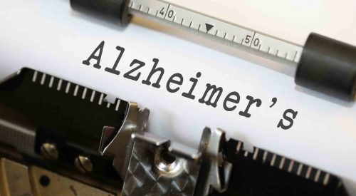 How to Help a Loved One With the Symptoms of Alzheimer's article thumbnail mt-3