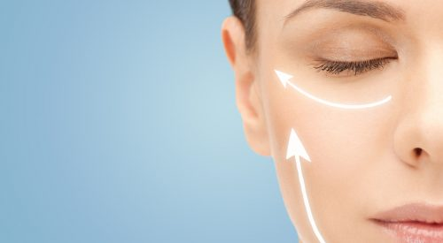 What You Need to Know About Facelift Surgery article thumbnail mt-3